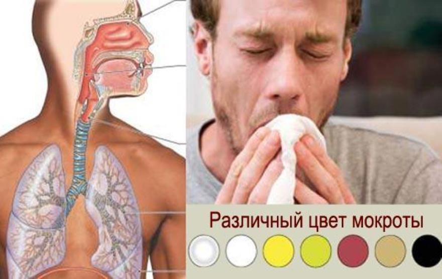 Опытный врач может по цвету мокроты диагностировать заболевание